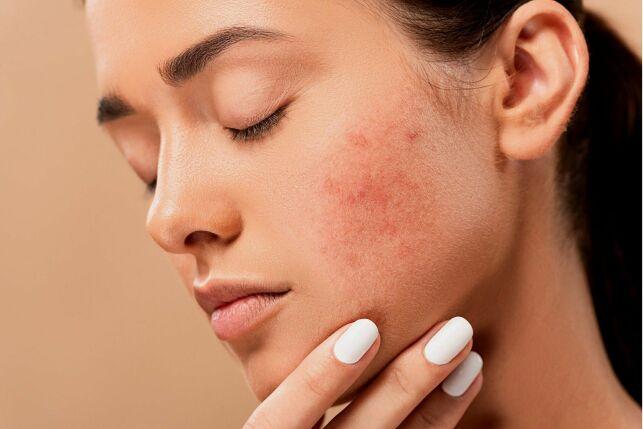 Gommage contre l'acné : comment soigner une peau acnéique ?