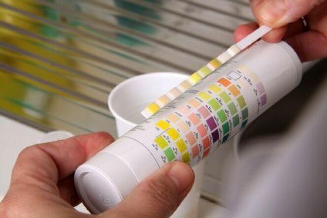 Bandelette test et comparateur colorimétrique
