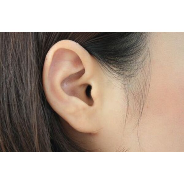 Mal aux oreilles la piscine comment y rem dier for Protege oreille piscine decathlon